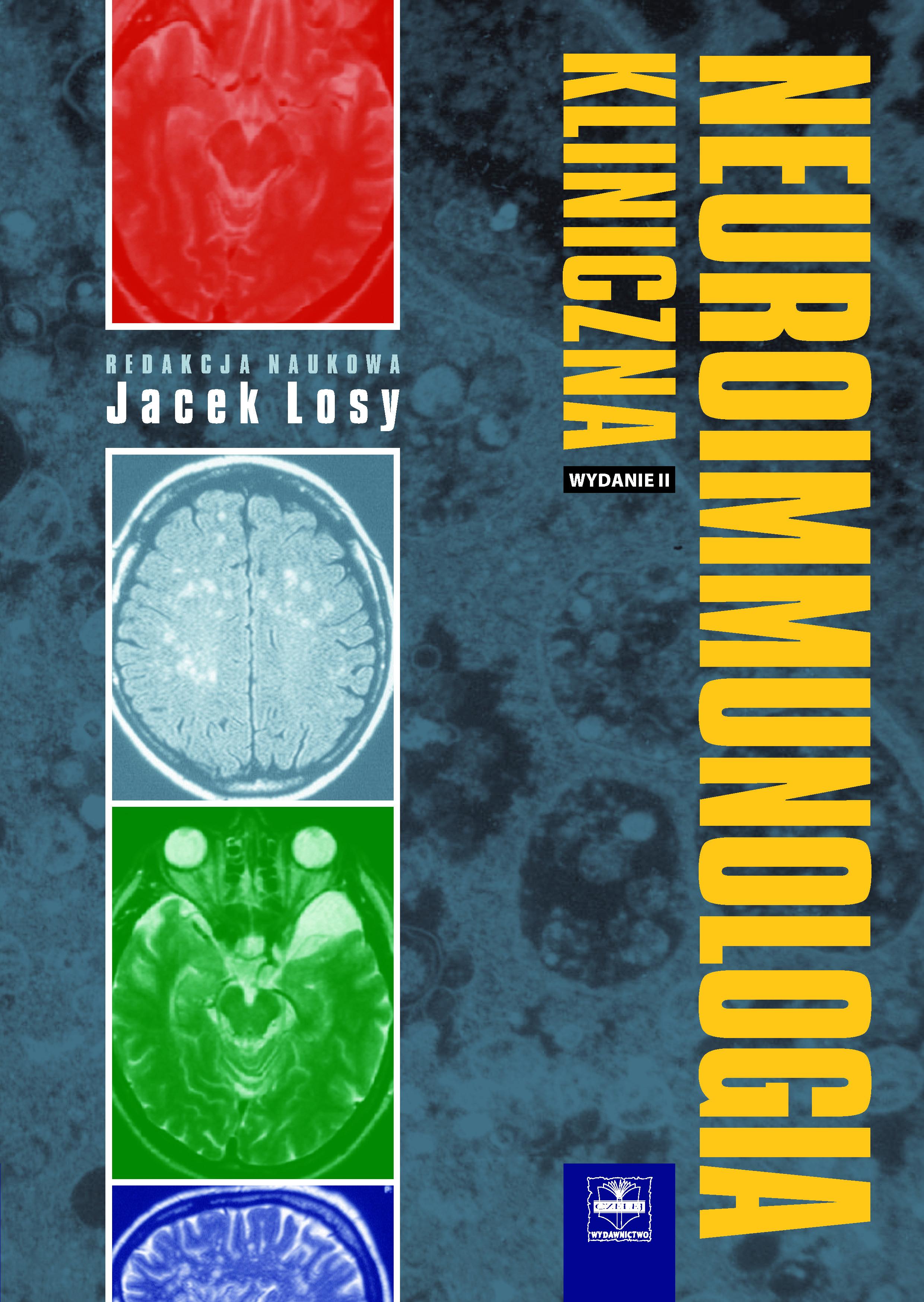 neuroimmunologia